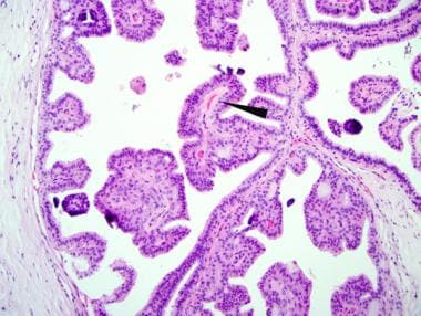 intraductal papillomatosis pathology)