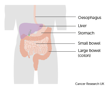 Ovarian cancer with bowel obstruction