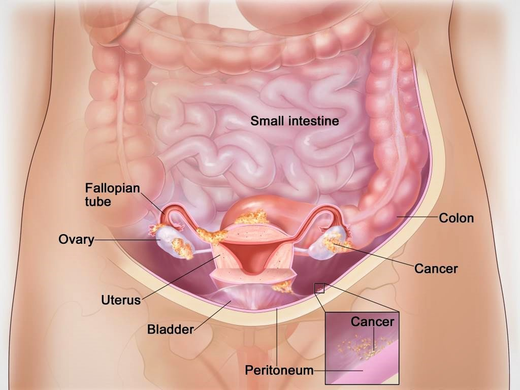 ovarian cancer or cysts)