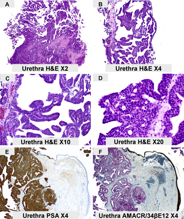Papillary lesion definition - eng2ro.ro