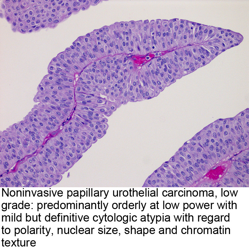 papillary urothelial neoplasm treatment)