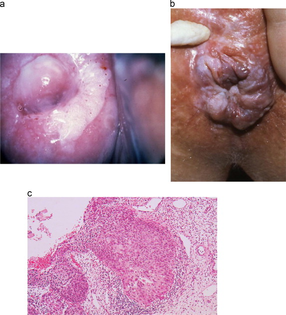 papilloma in german