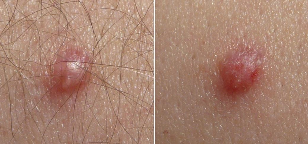papilloma skin treatment trece fecalele către helminți