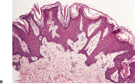 papillomatosis skin pathology)
