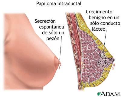 papilomatosis intraductal)