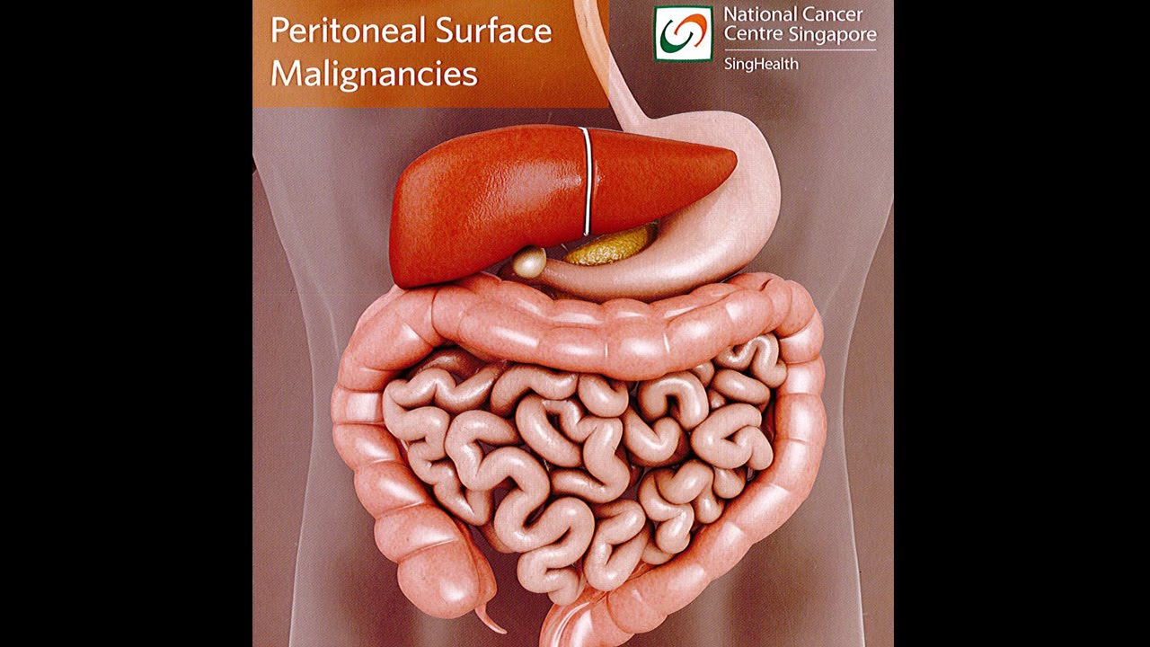 peritoneal cancer male
