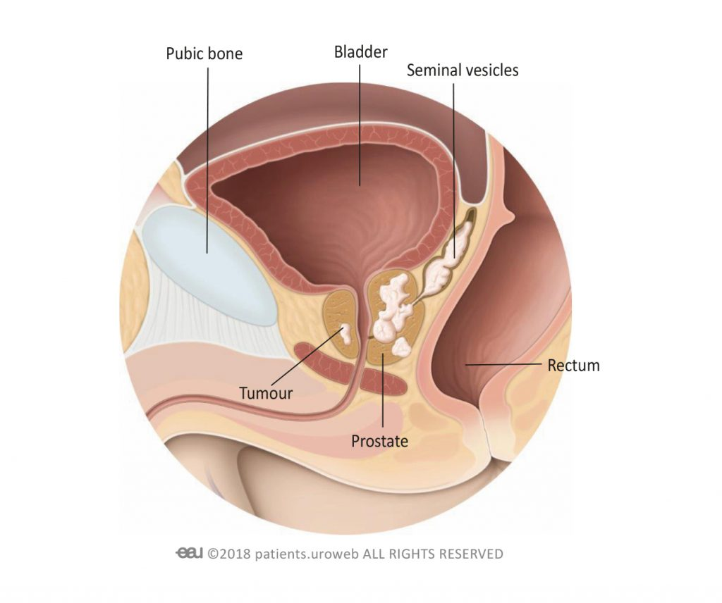 Prostatică obstrucție carcinom Rectal cancer with prostate invasion