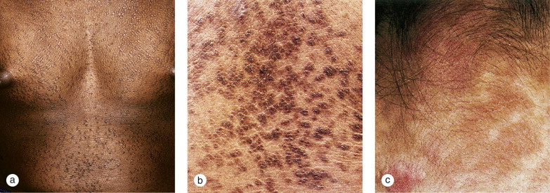 reticulated papillomatosis and minocycline)