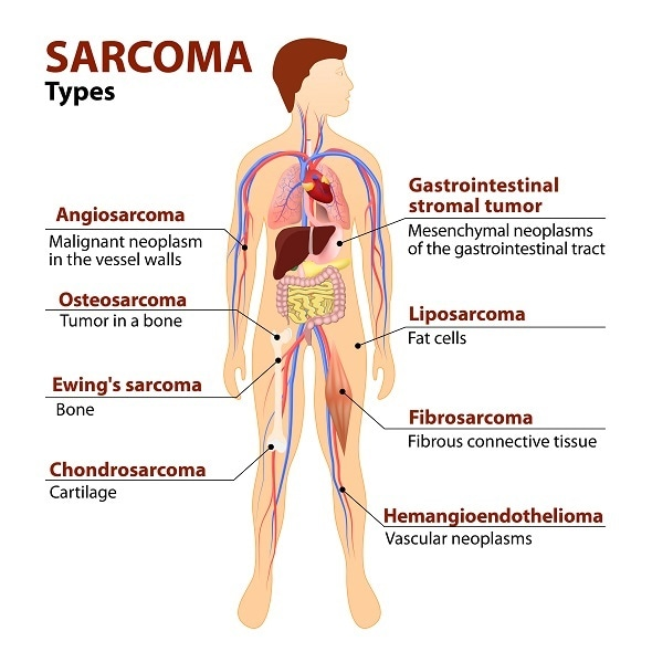 sarcoma cancer head)