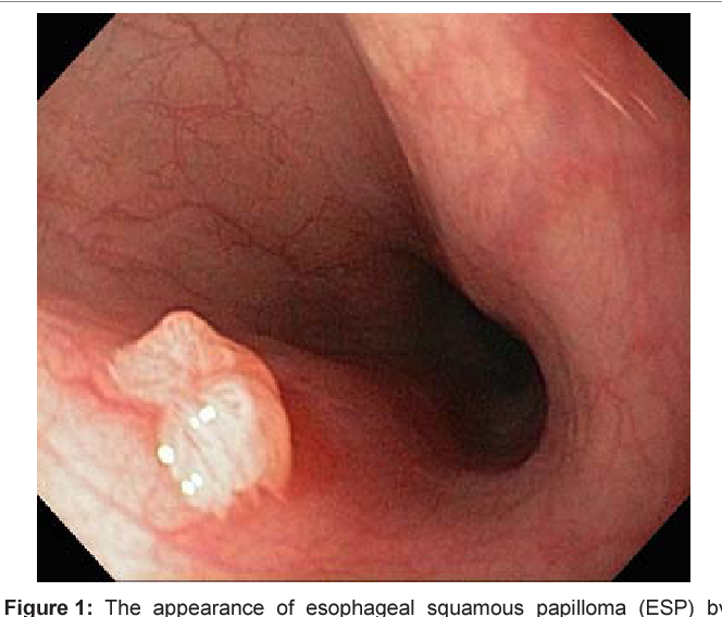 Squamous papilloma esophagus location