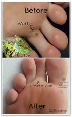 Wart removal home remedy duct tape Hpv research where should we place your bets