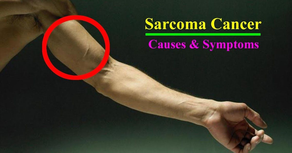 sarcoma cancer fighting foods