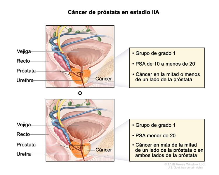 Sintomas do cancer de garganta por hpv