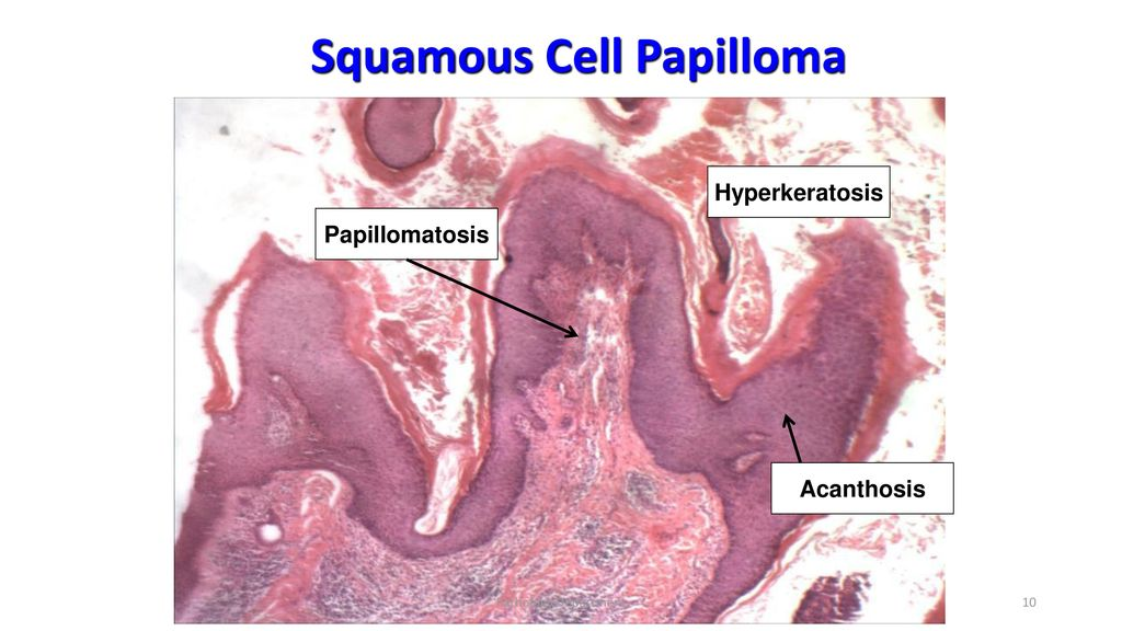 squamous papilloma with hyperkeratosis