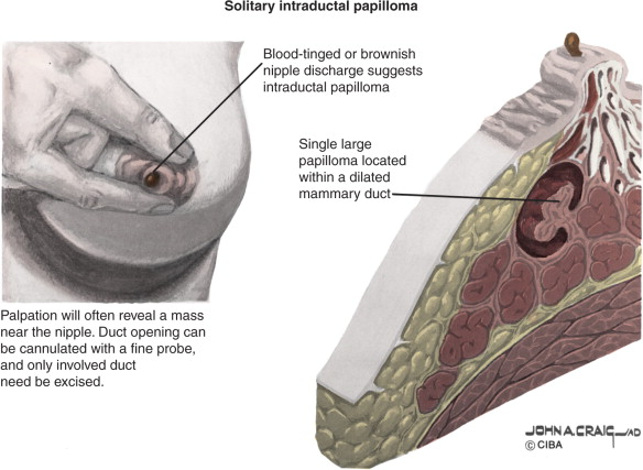 What does ductal papilloma mean. Breast duct papilloma treatment Intraductal papilloma def
