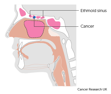 metastatic cancer from sinus)