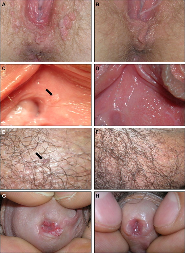 hpv urethra treatment)