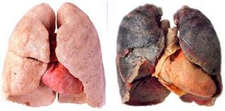 hpv cancer lung