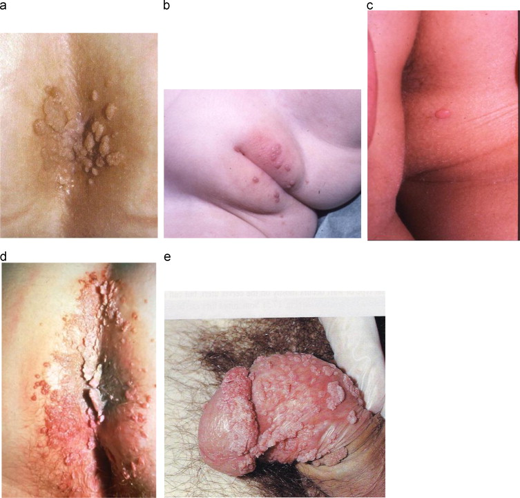 human papillomavirus infection elbow)