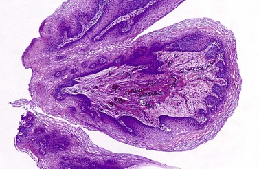 squamous papilloma urinary bladder