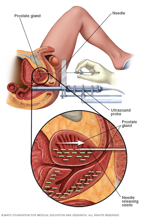 endometrial cancer brachytherapy side effects)