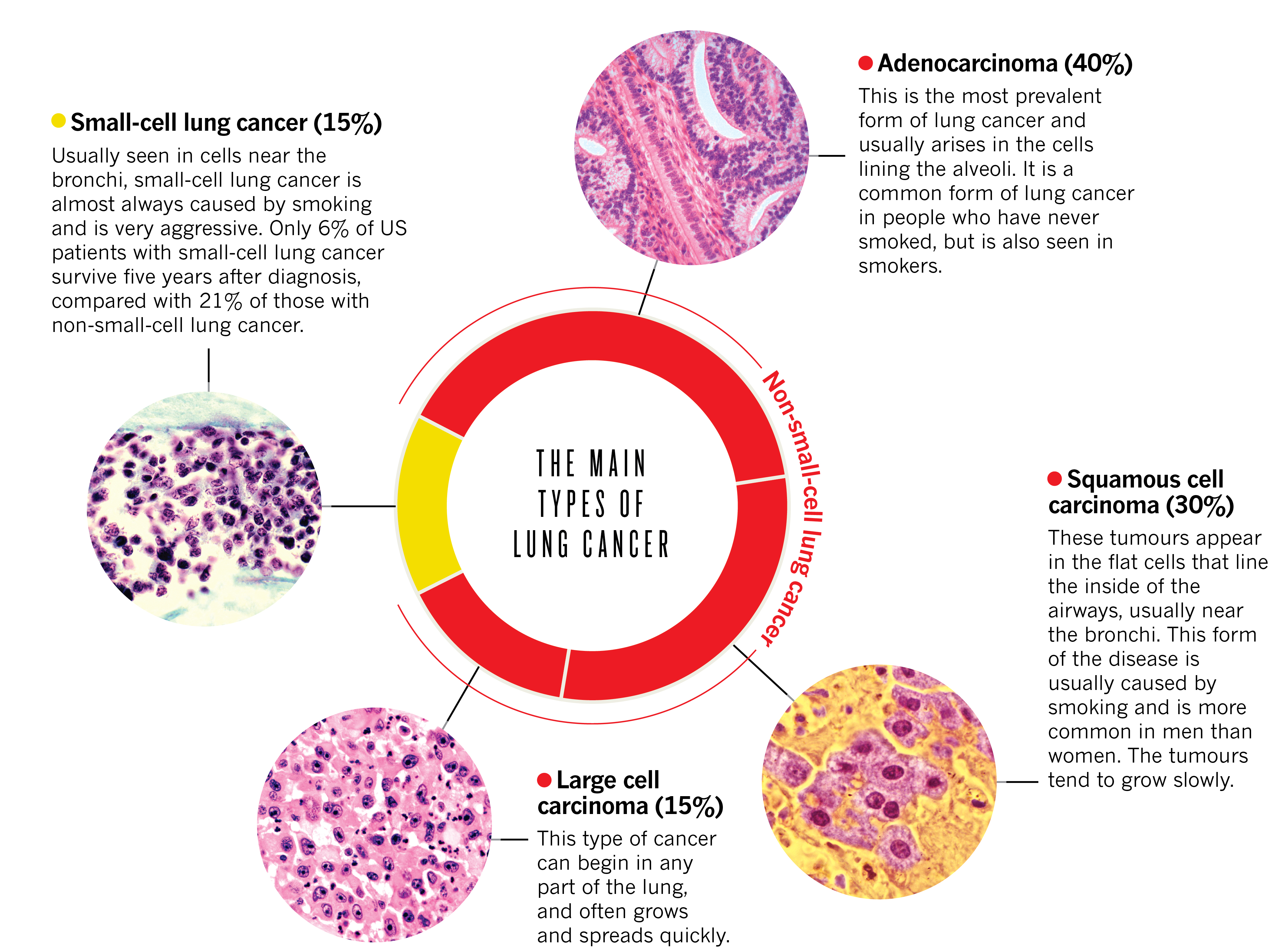 cancer aggressive types