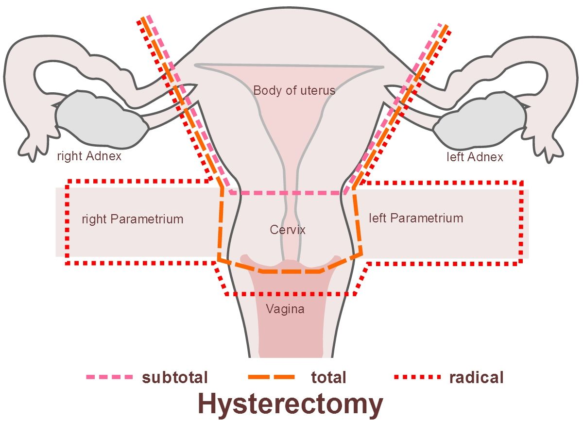 ovarian cancer with hysterectomy)