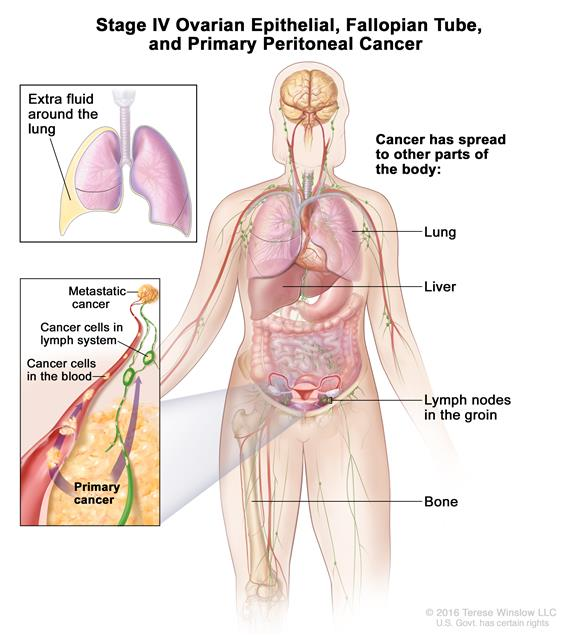 Peritoneal cancer causes - Peritonită
