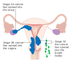 Ovarian cancer or endometriosis, The 4 Stages of Endometriosis