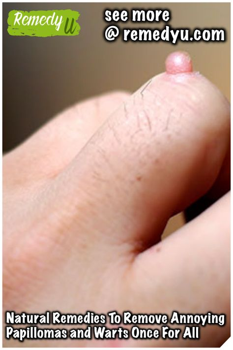 Removal of facial warts by home remedy - Colon cancer benign polyps