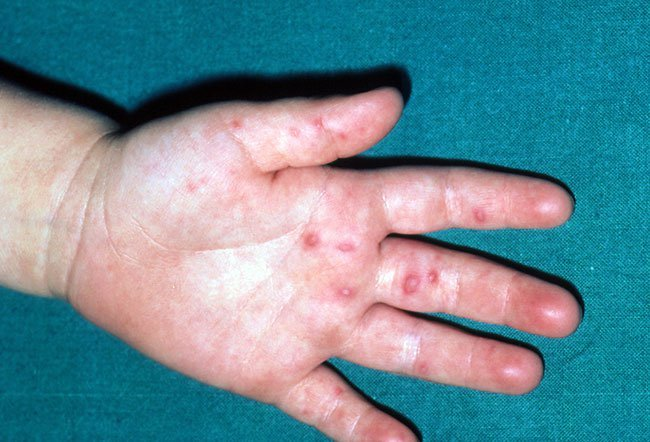 Condylomata (Genital Warts; HPV) Warts on hands and hpv