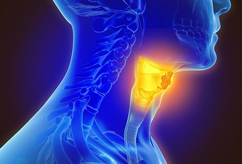 hpv related throat cancer prognosis)