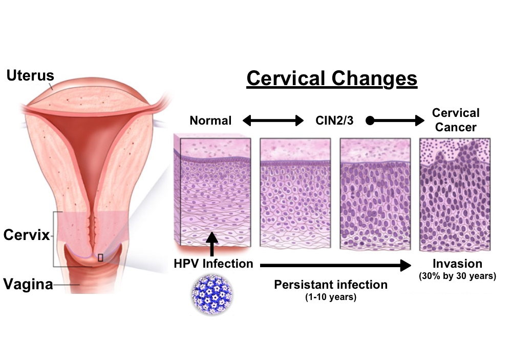 hpv causes ms)