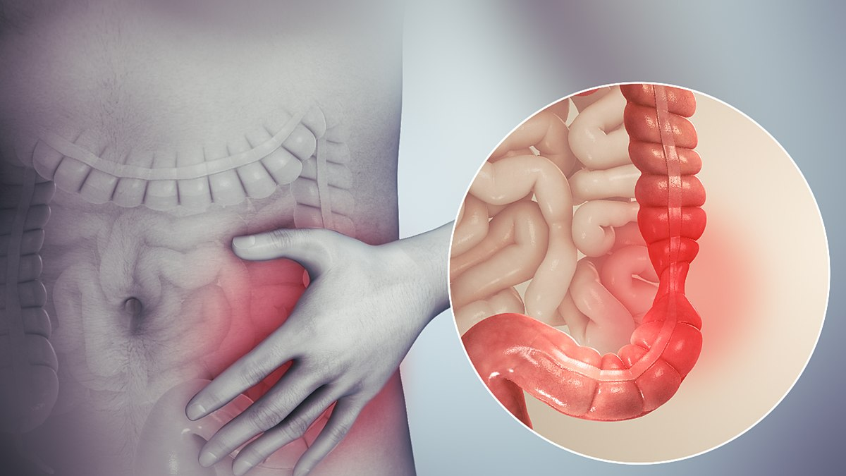 colon cancer abdominal bloating