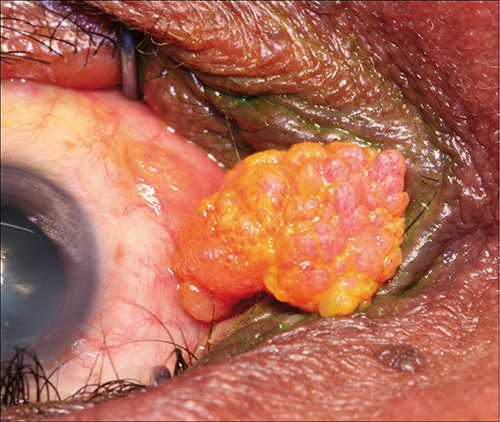 conjunctival papilloma causes