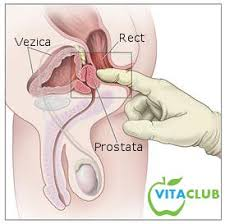 noutati tratament cancer prostata)