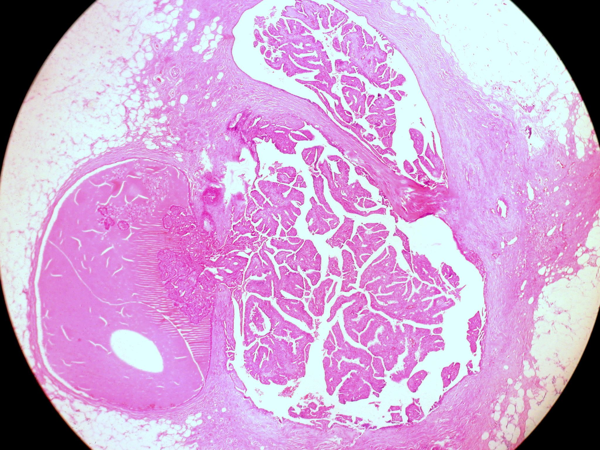 are intraductal papillomas cancerous)