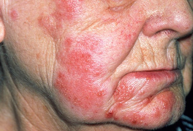 Tip HPV 31 Hpv face pimples