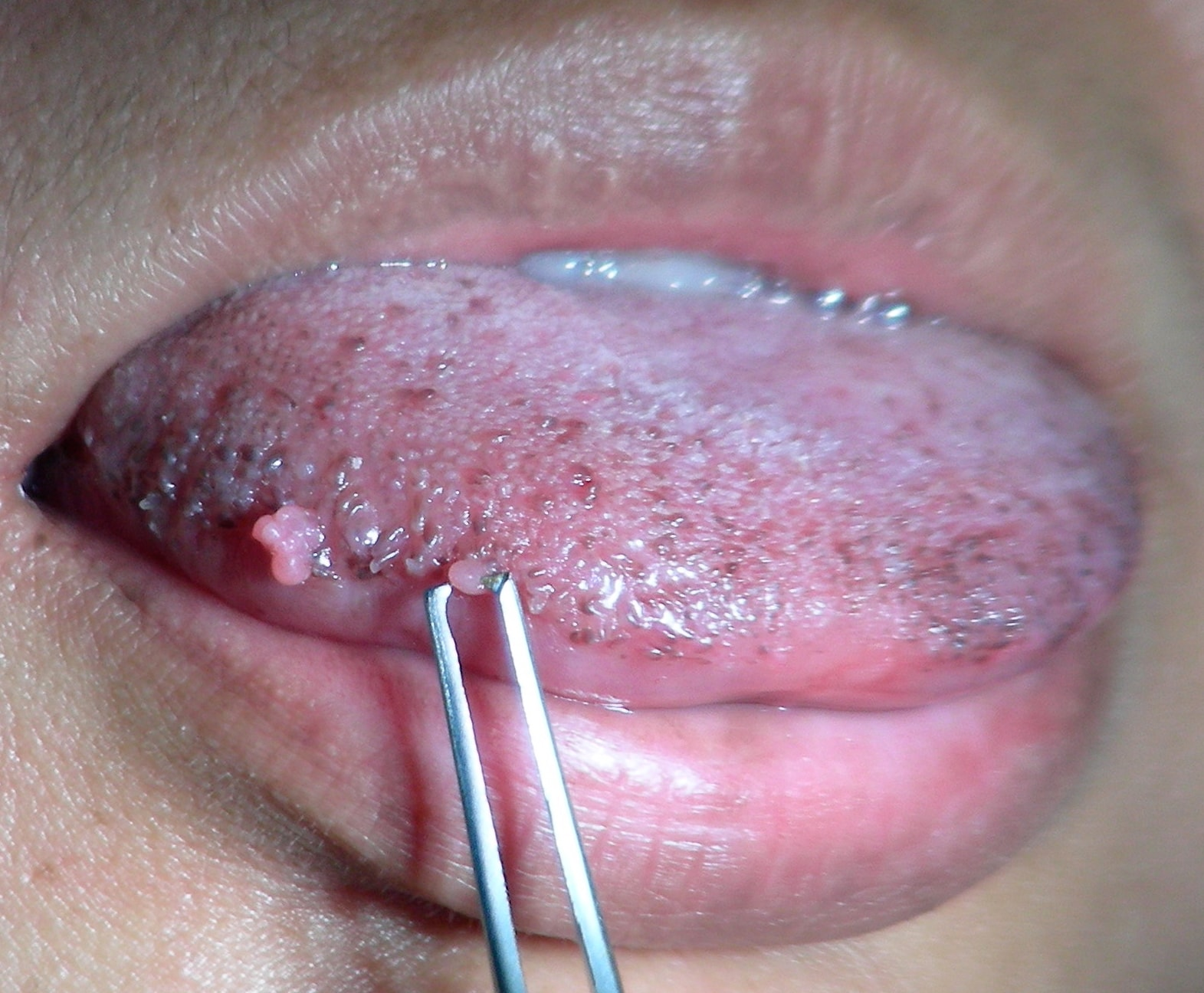 small papilloma on tongue