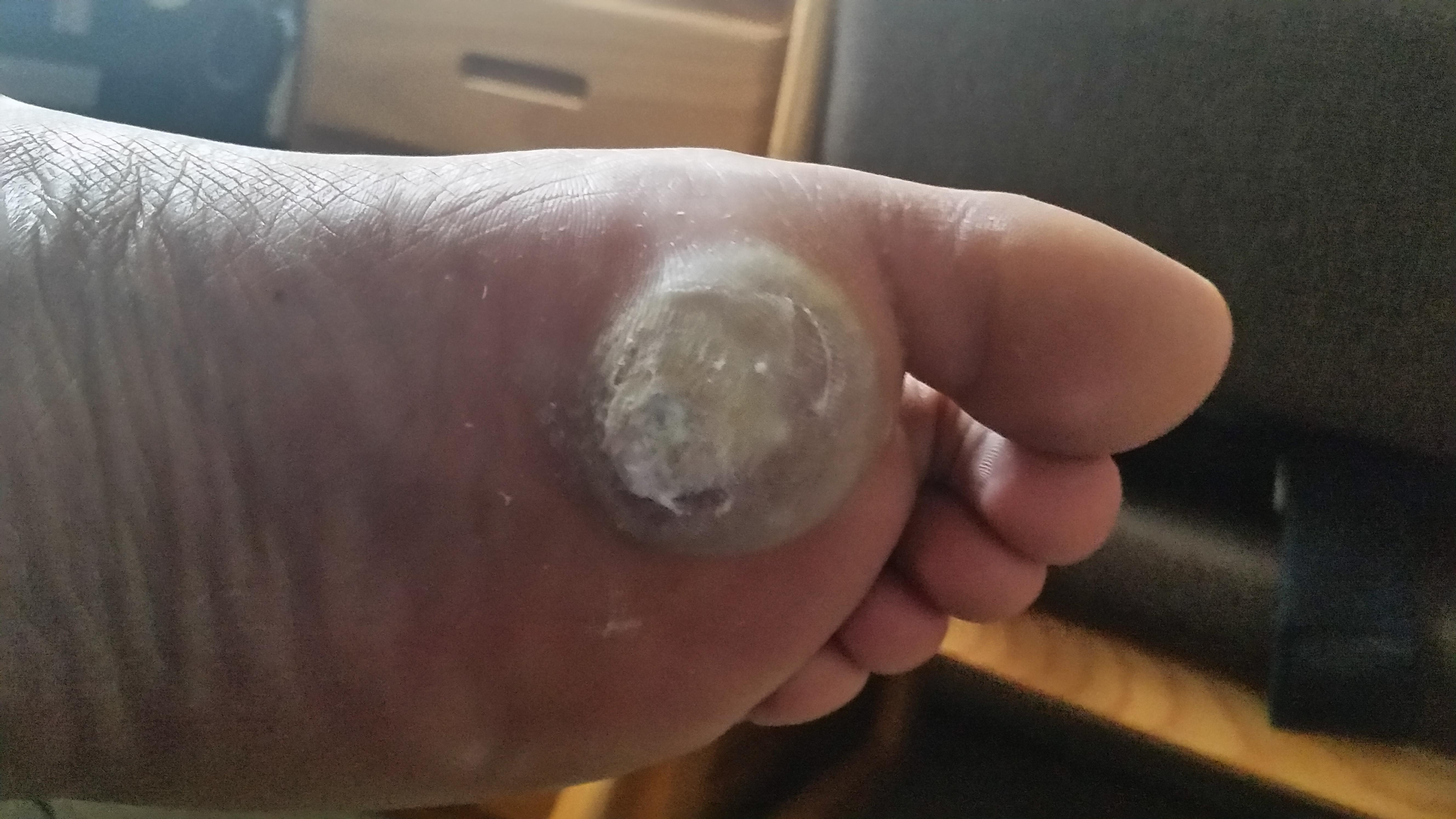 Wart treatment that blisters