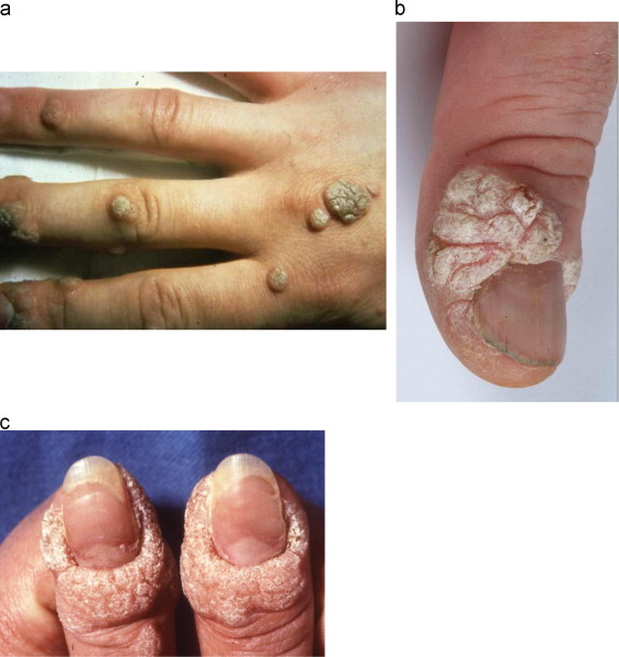 hpv symptoms on hands