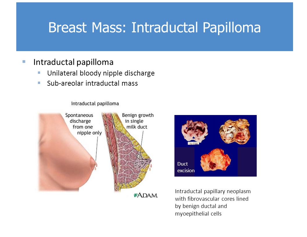 intraductal papilloma bloody discharge)
