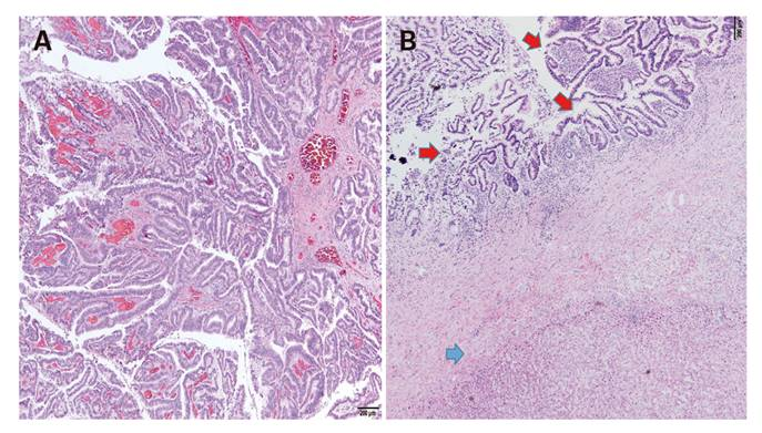 NEUROLOGICAL MANIFESTATIONS IN SPORADIC EUTHYROID GOITER Intraductal papilloma liver
