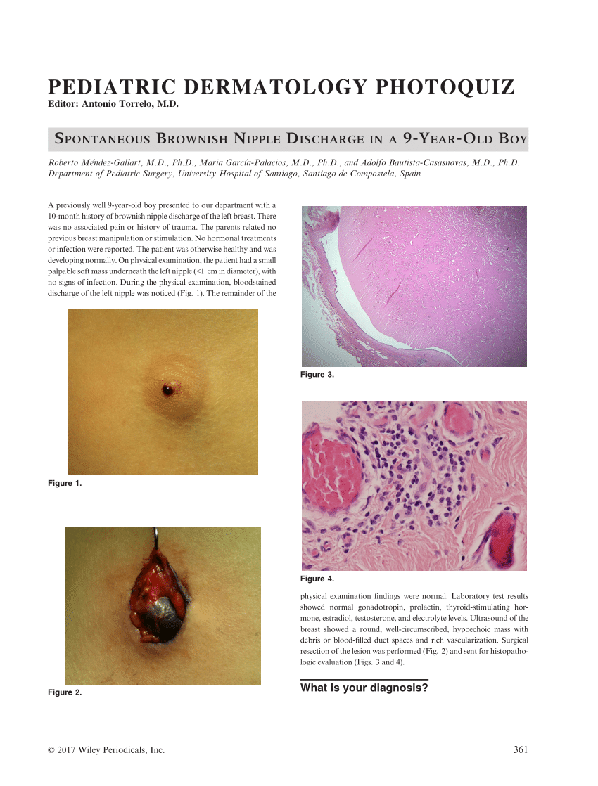 Signs of breast duct papilloma, REVIEW-URI