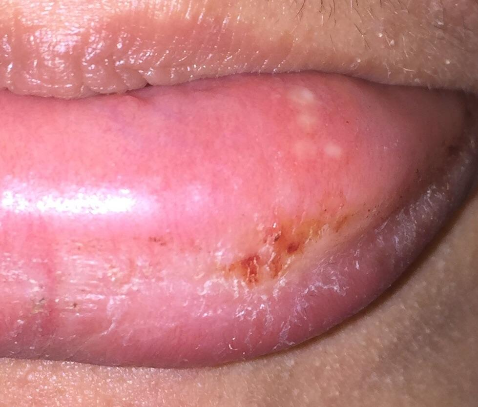 Hpv under tongue reddit - Esențialul despre infecția cu HPV – Health & Beauty Online Journal