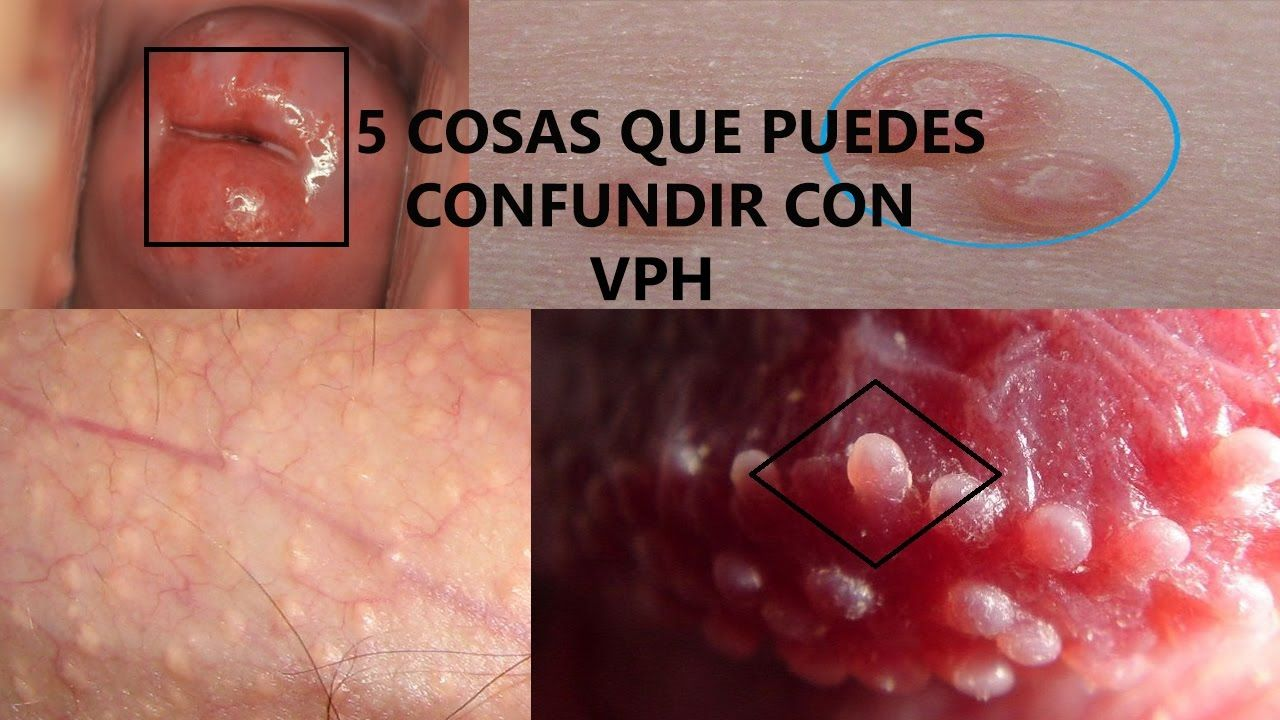 Ruta homeopatie varicele, Herpes zoster y papiloma humano