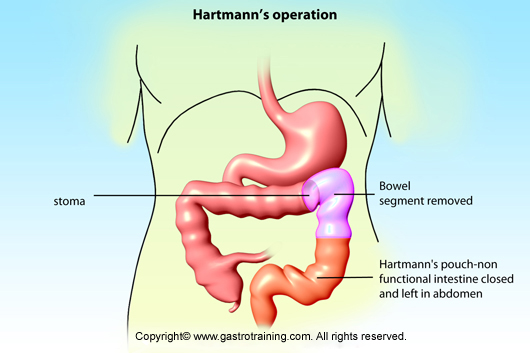 Rectal cancer hartmanns procedure,