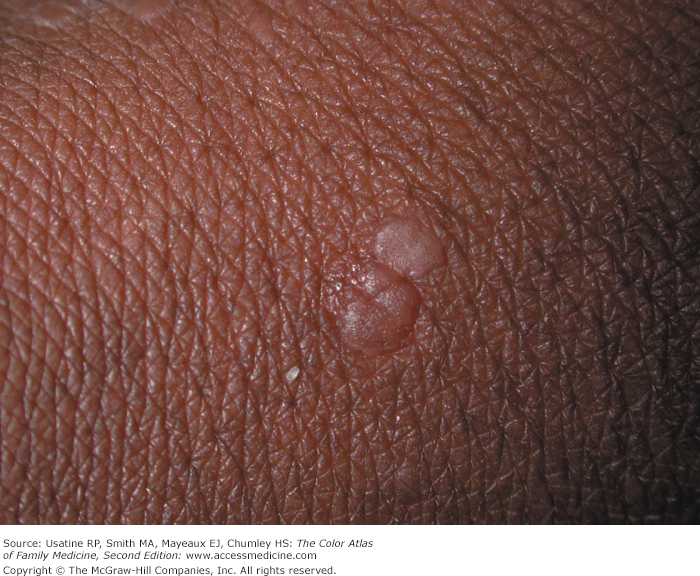 small warts on hands reddit)