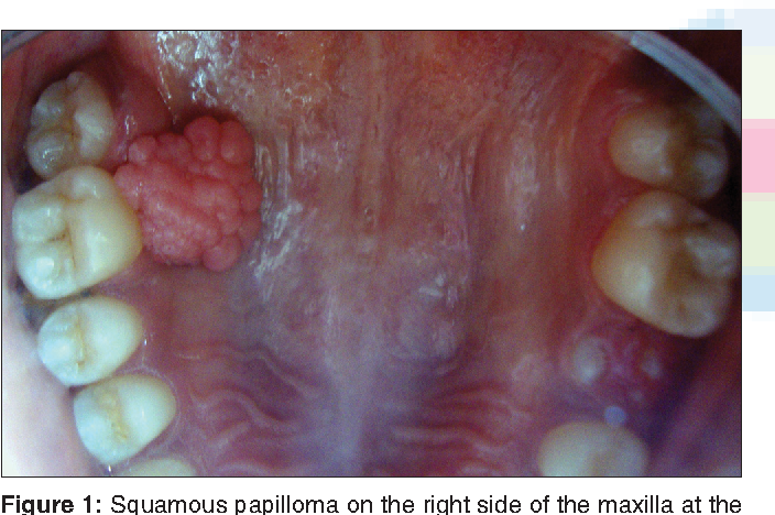 squamous cell papilloma nhs)